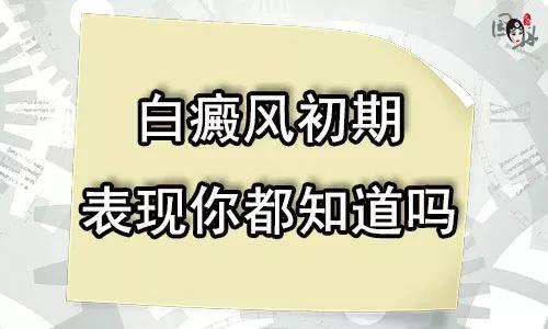 云南白癜风初期症状什么样